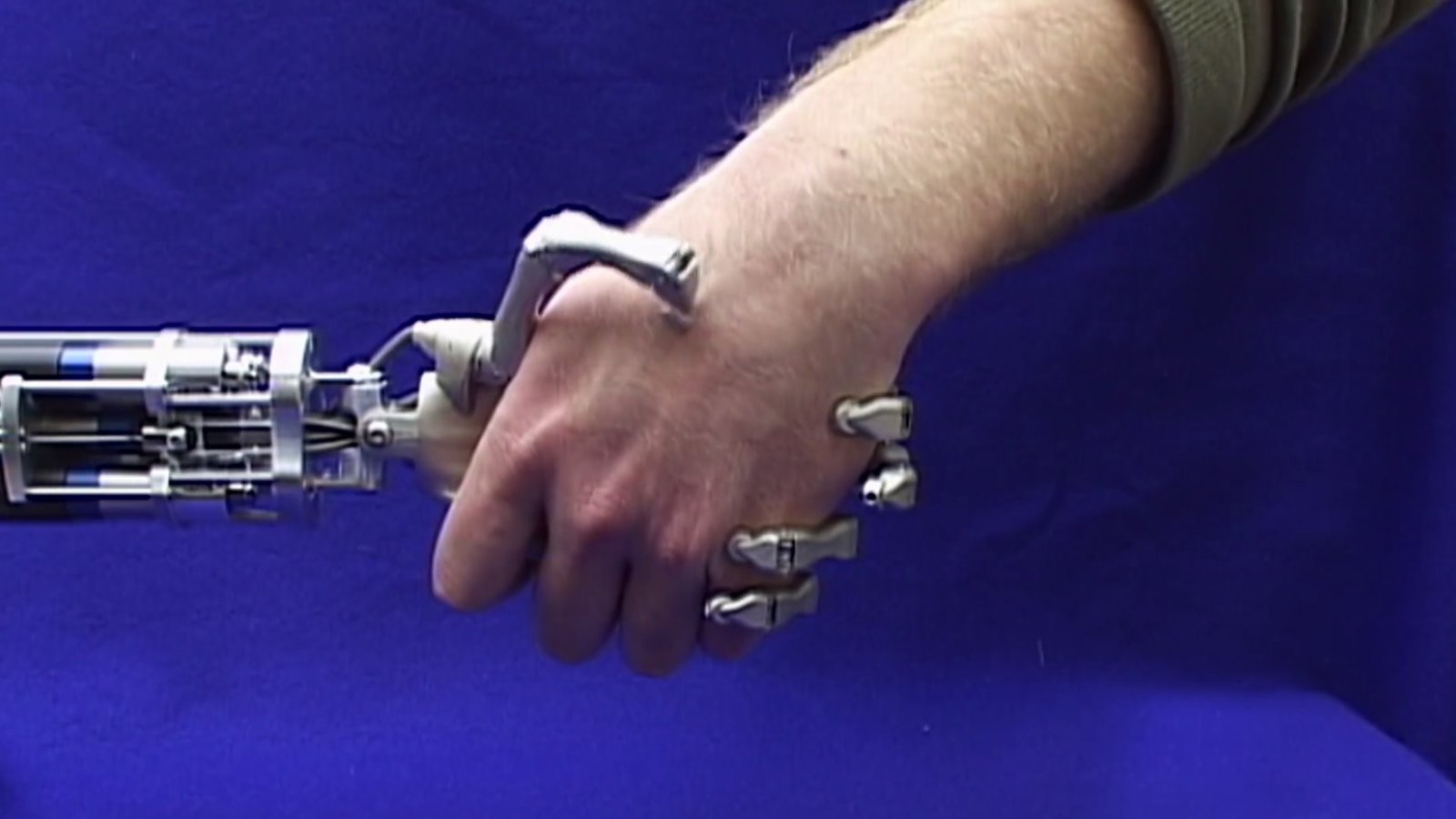 Out on a Limb - The Transformative Impact of Prosthetics Technology